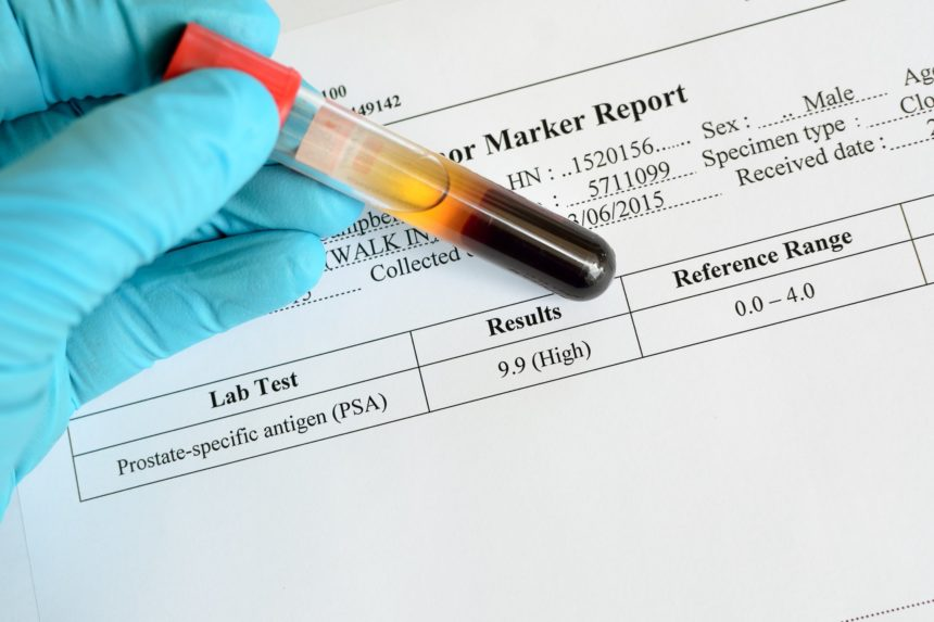 PSA lab report