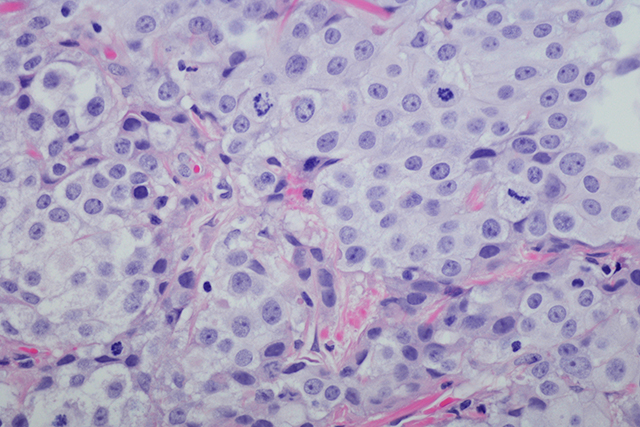 Micrograph of Invasive urothelial carcinoma high grade.