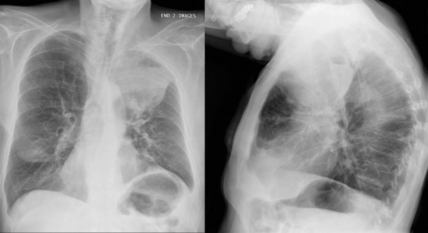 The MET alteration occurs in 3% to 4% of patients with the condition.